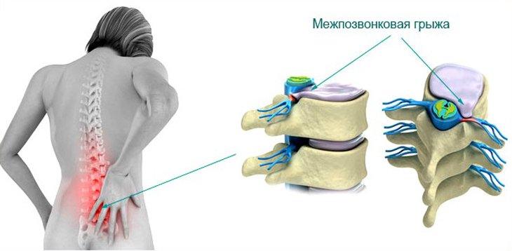 грыжа позвоночника и гипертония Межпозвонковая грыжа и артериальное давление