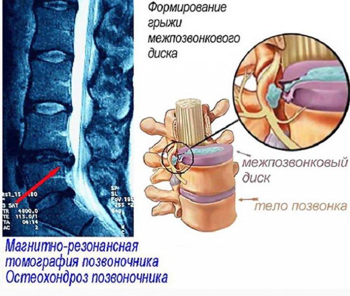 Грудной остеохондроз симптомы и лечение (4 фото+видео)