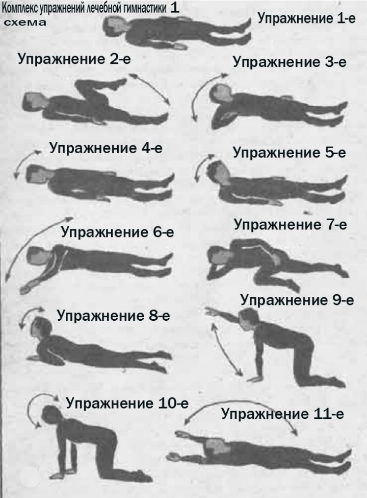 Шейный остеохондроз, упражнения Лечебной гимнастики схема