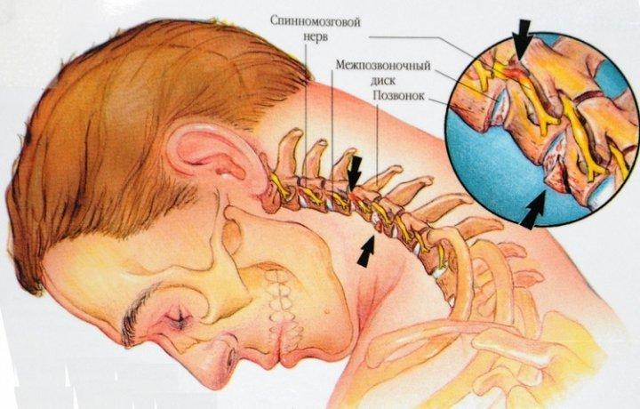 Шейный остеохондроз, симптомы, лечение