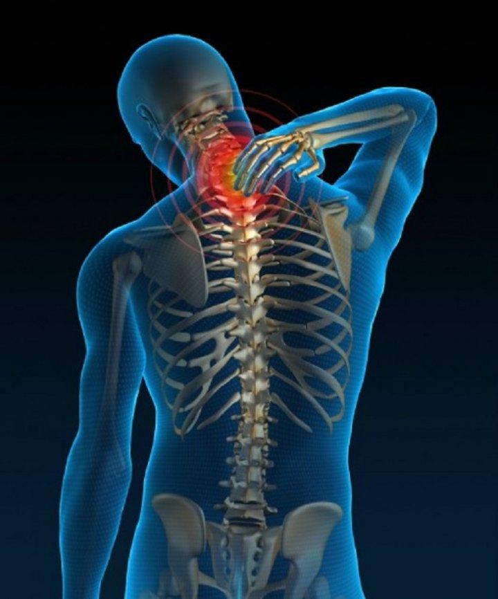 Шейный остеохондроз, симптомы