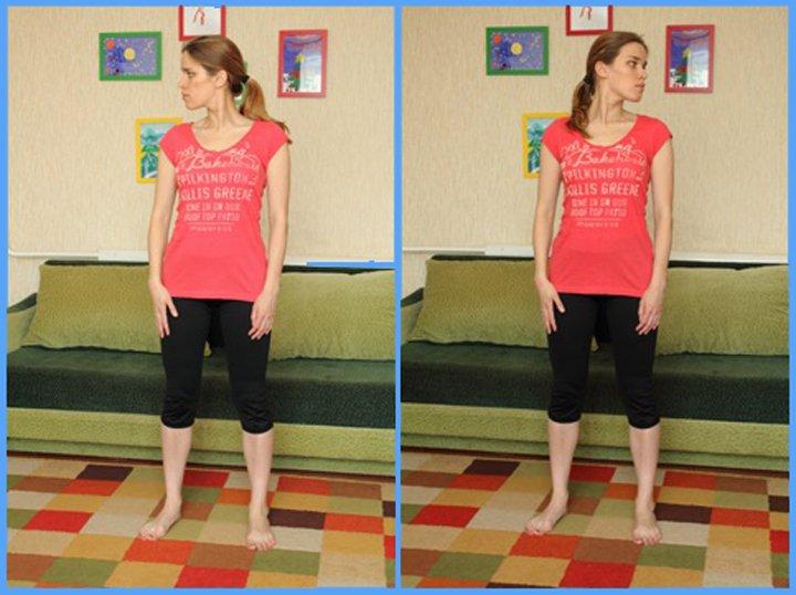 Шейный радикулит, упражнения лечебной физкультуры (ЛФК) (3 фото+видео)