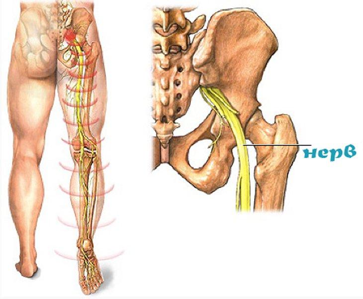 Ригидности мышц шеи лечение