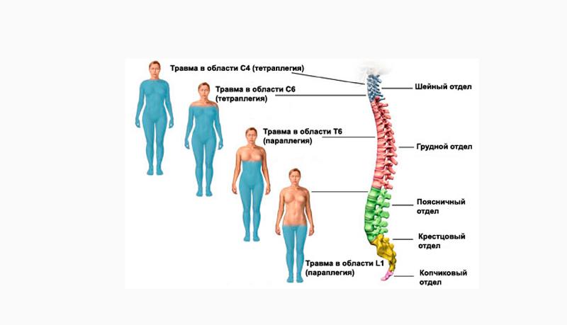 Ушиб грудного отдела позвоночника
