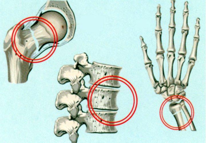 Остеопороз симптомы и лечение места