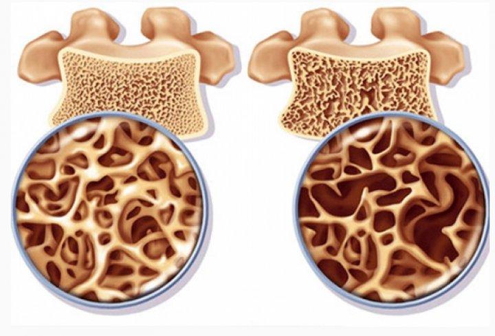 Остеопороз симптомы и лечение картинка