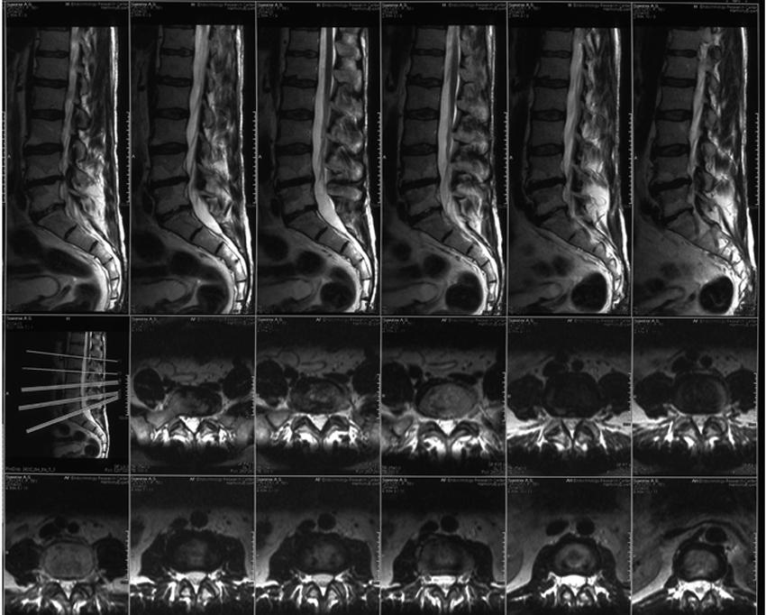 Грыжа поясничного отдела позвоночника (4 фото + видео), лечение ...