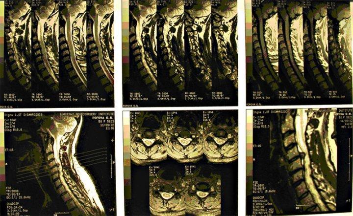 МРТ позвоночника шейного отдела снимок