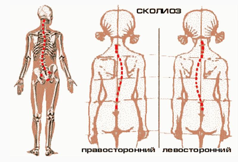 Прогноз лечение сколиоза