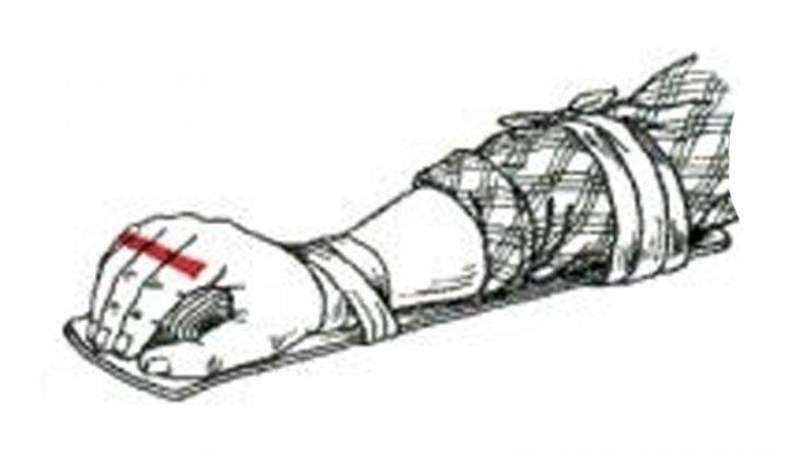 Перелом кисти налаживаем шину