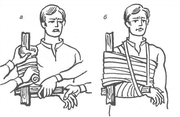 Перелом руки налаживаем шину