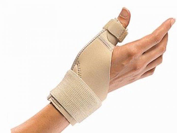 Перелом руки фото