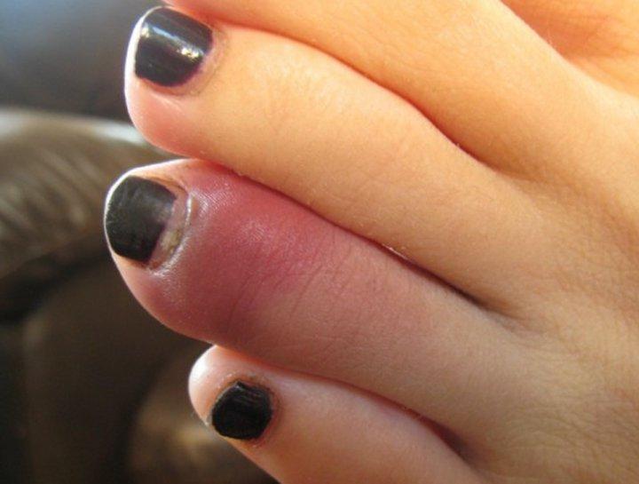 перелом пальце ноги